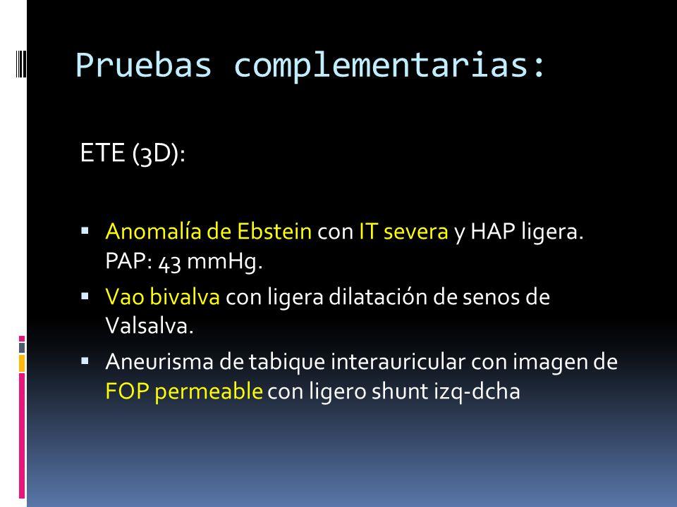 Pruebas complementarias: ETE (3D): Anomalía de Ebstein con IT severa y HAP ligera. PAP: 43 mmHg. Vao bivalva con ligera dilatación de senos de Valsalv