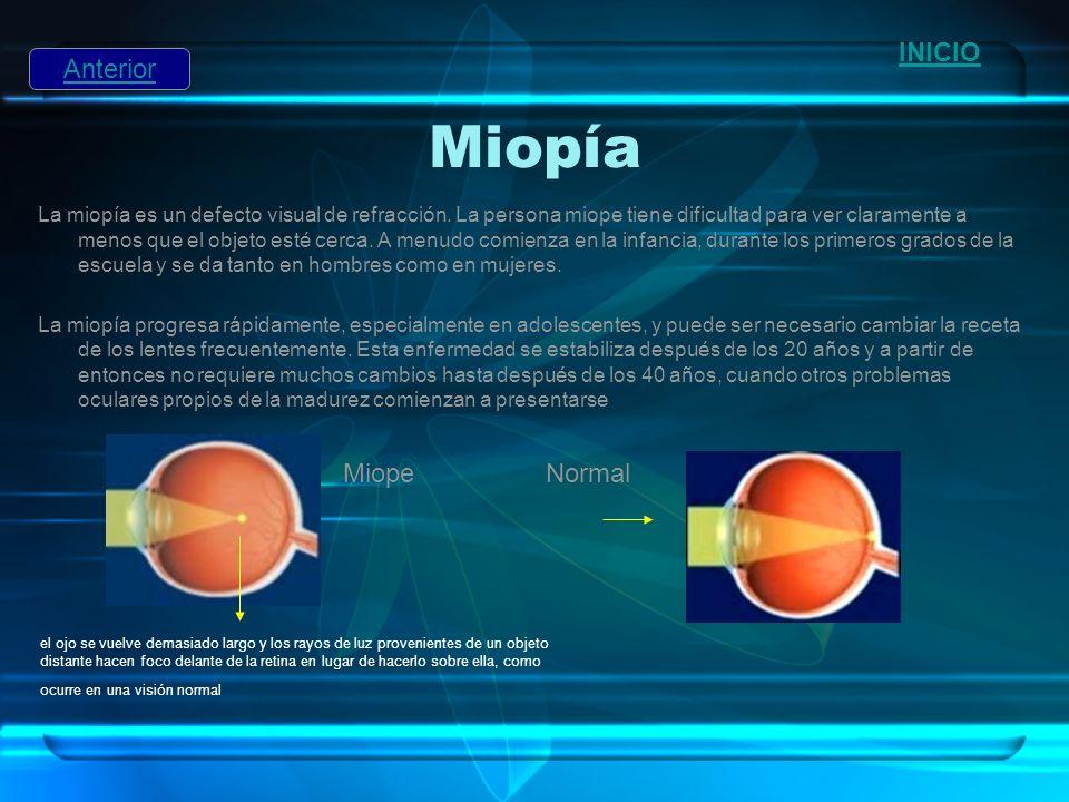Miopía La miopía es un defecto visual de refracción. La persona miope tiene dificultad para ver claramente a menos que el objeto esté cerca. A menudo