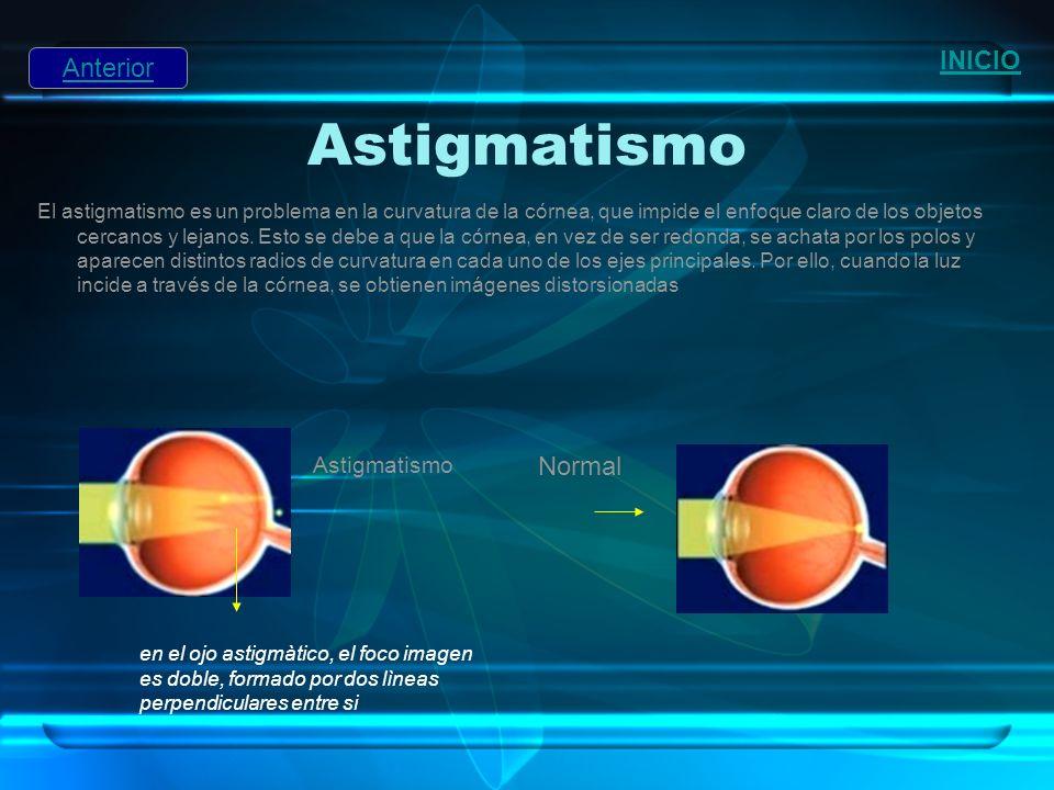Astigmatismo El astigmatismo es un problema en la curvatura de la córnea, que impide el enfoque claro de los objetos cercanos y lejanos. Esto se debe