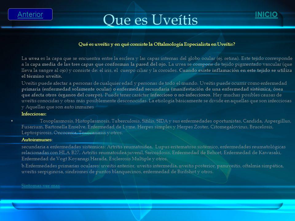 Que es Uveítis Qué es uveítis y en qué consiste la Oftalmología Especialista en Uveítis? La uvea es la capa que se encuentra entre la esclera y las ca