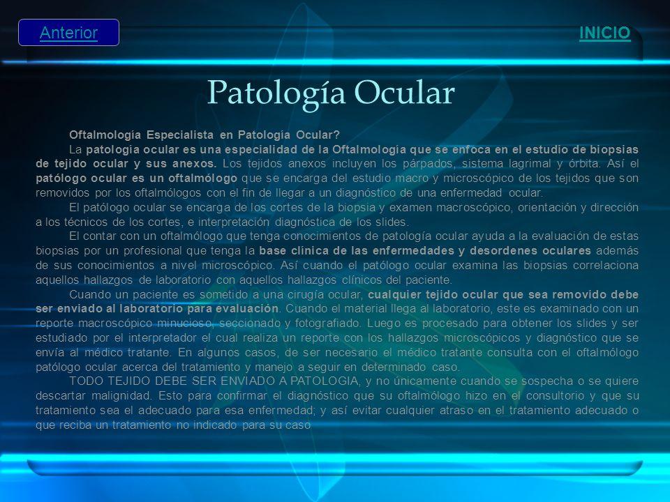 Patología Ocular INICIO Anterior Oftalmología Especialista en Patología Ocular? La patología ocular es una especialidad de la Oftalmología que se enfo