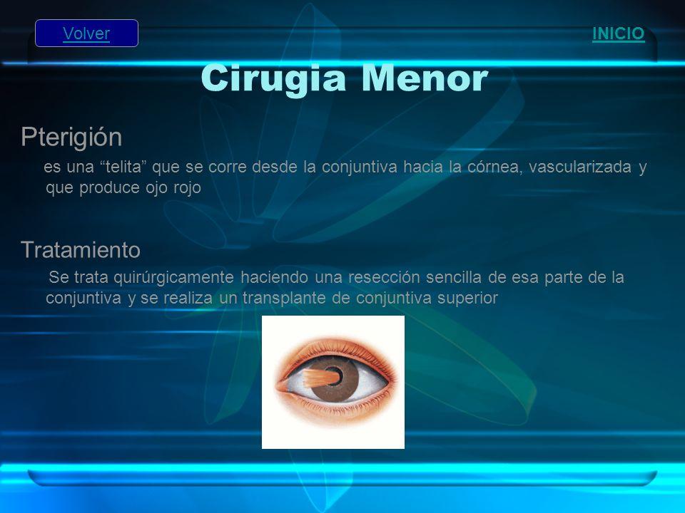 Cirugia Menor Pterigión es una telita que se corre desde la conjuntiva hacia la córnea, vascularizada y que produce ojo rojo Tratamiento Se trata quir