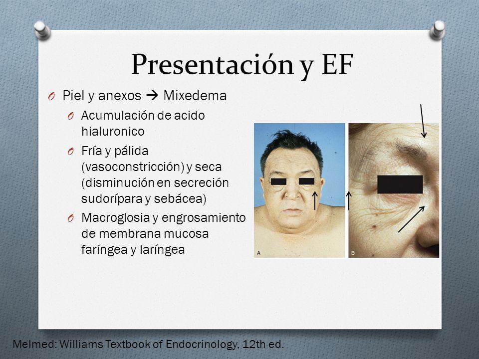 Presentación y EF O Piel y anexos Mixedema O Acumulación de acido hialuronico O Fría y pálida (vasoconstricción) y seca (disminución en secreción sudo
