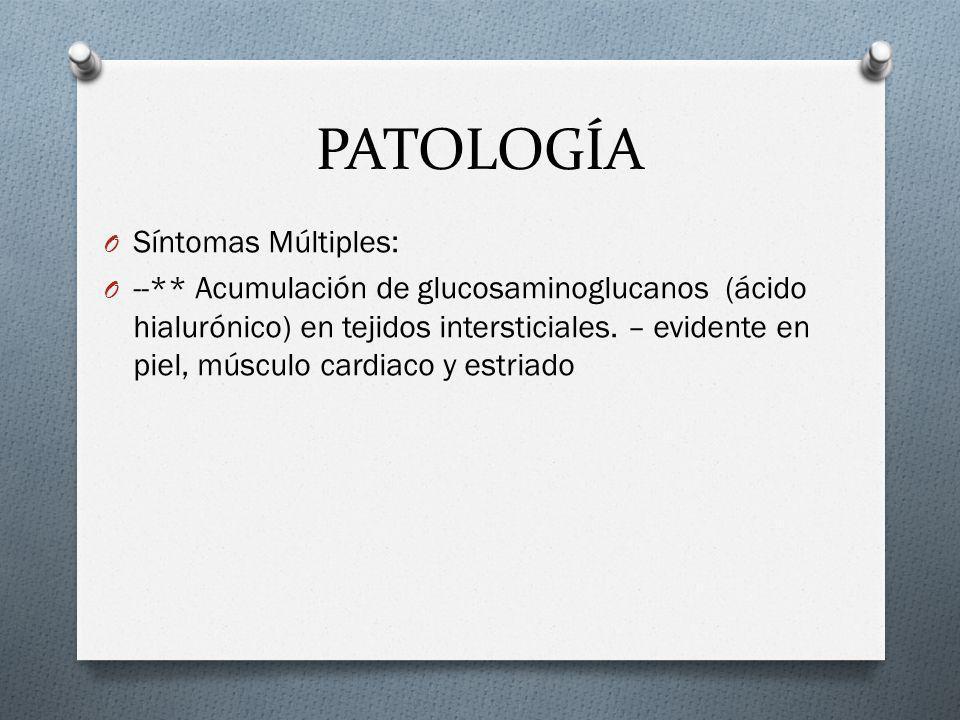 PATOLOGÍA O Síntomas Múltiples: O --** Acumulación de glucosaminoglucanos (ácido hialurónico) en tejidos intersticiales. – evidente en piel, músculo c