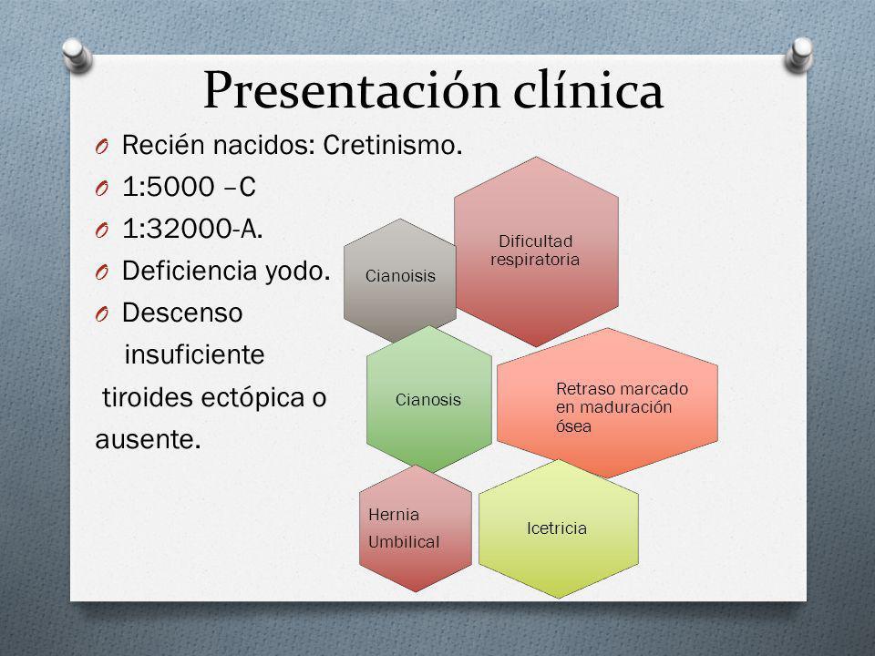 Presentación clínica O Recién nacidos: Cretinismo. O 1:5000 –C O 1:32000-A. O Deficiencia yodo. O Descenso insuficiente tiroides ectópica o ausente. D