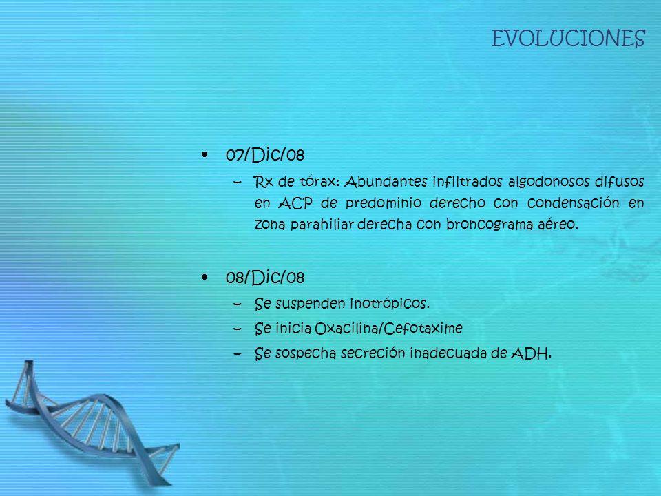 EVOLUCIONES 07/Dic/08 –Rx de tórax: Abundantes infiltrados algodonosos difusos en ACP de predominio derecho con condensación en zona parahiliar derecha con broncograma aéreo.