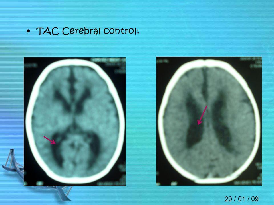 20 / 01 / 09 TAC Cerebral control: