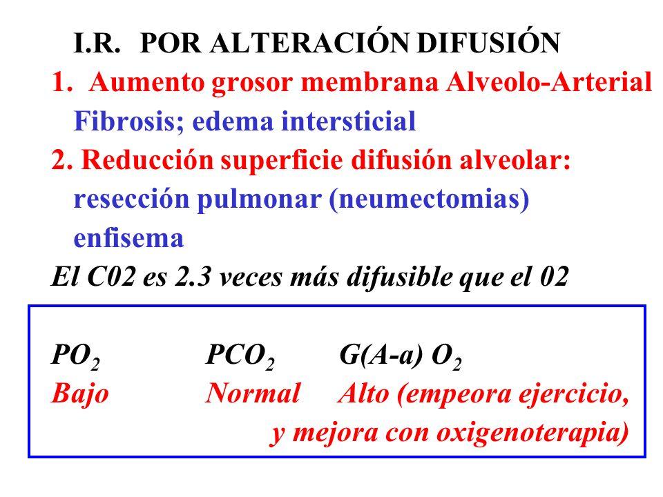 I.R. POR ALTERACIÓN DIFUSIÓN 1. Aumento grosor membrana Alveolo-Arterial Fibrosis; edema intersticial 2. Reducción superficie difusión alveolar: resec