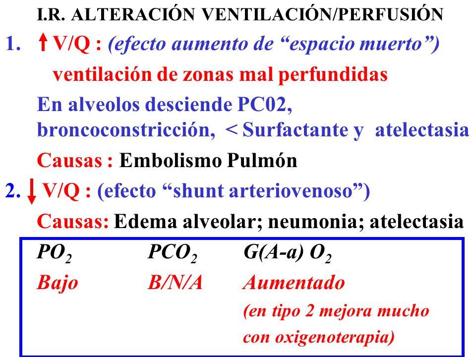 I.R. ALTERACIÓN VENTILACIÓN/PERFUSIÓN 1.V/Q : (efecto aumento de espacio muerto) ventilación de zonas mal perfundidas En alveolos desciende PC02, bron