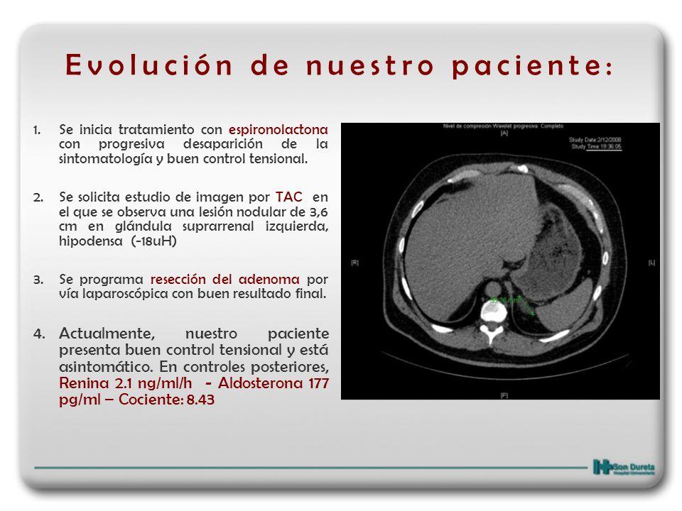 Relevancia clínica Entre un 5 y un 13% de los pacientes hipertensos presentan un cierto grado de hiperaldosteronismo, la mayoría de los cuales cursan con niveles plasmáticos de potasio normales.
