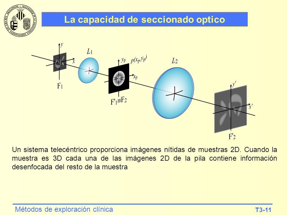 T3-11 Métodos de exploración clínica La capacidad de seccionado optico Un sistema telecéntrico proporciona imágenes nítidas de muestras 2D. Cuando la