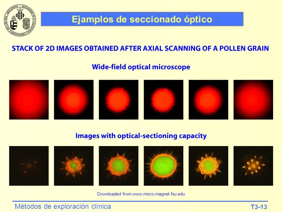 T3-13 Métodos de exploración clínica Ejamplos de seccionado óptico Downloaded from www.micro.magnet.fsu.edu