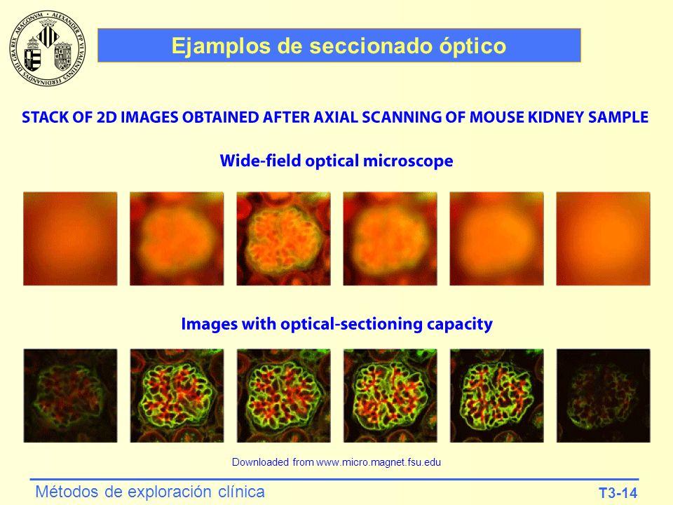 T3-14 Métodos de exploración clínica Ejamplos de seccionado óptico Downloaded from www.micro.magnet.fsu.edu