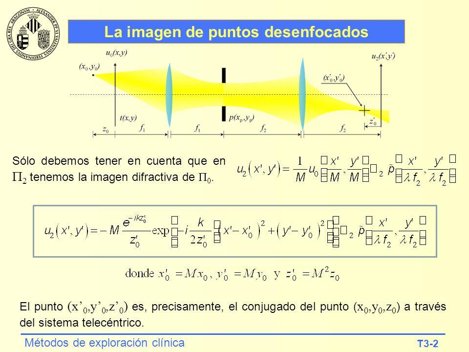 T3-2 Métodos de exploración clínica La imagen de puntos desenfocados Sólo debemos tener en cuenta que en 2 tenemos la imagen difractiva de 0. El punto