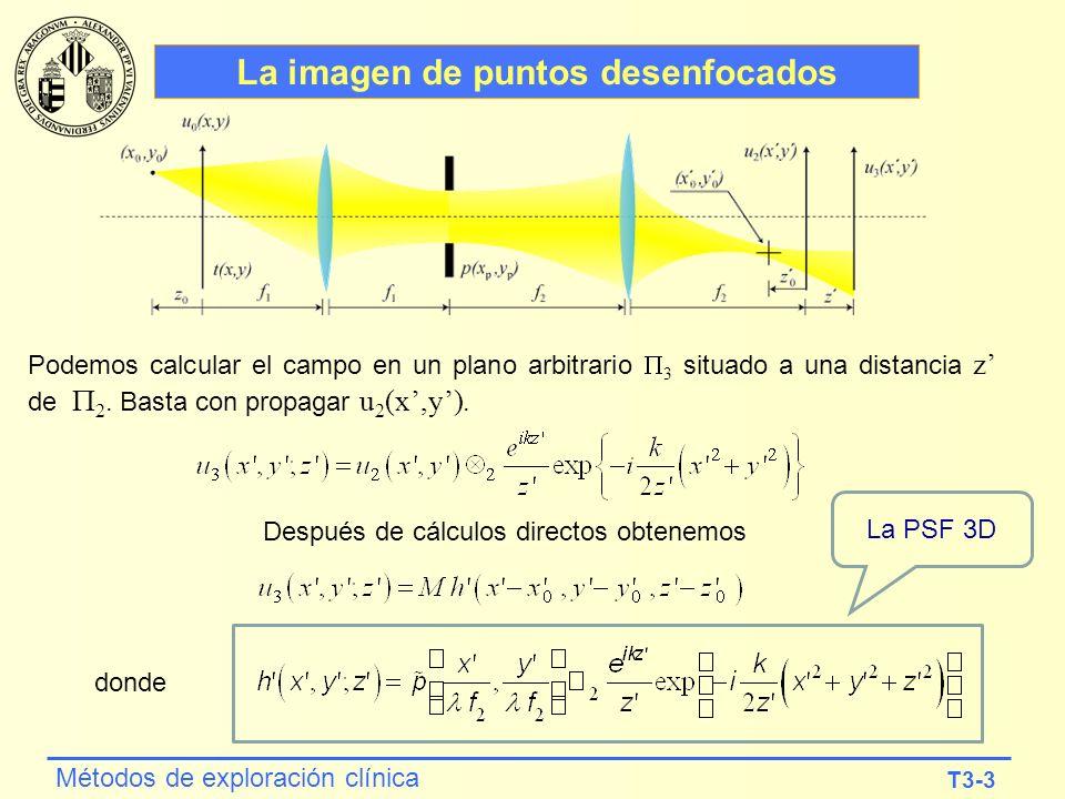 T3-3 Métodos de exploración clínica La imagen de puntos desenfocados Podemos calcular el campo en un plano arbitrario 3 situado a una distancia z de 2