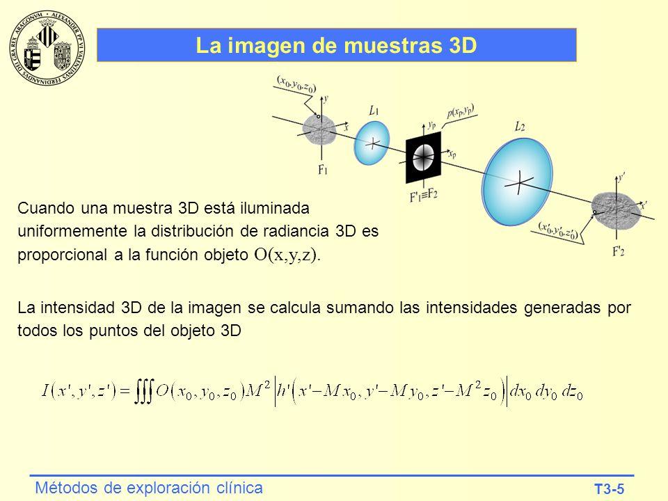 T3-5 Métodos de exploración clínica La imagen de muestras 3D Cuando una muestra 3D está iluminada uniformemente la distribución de radiancia 3D es pro