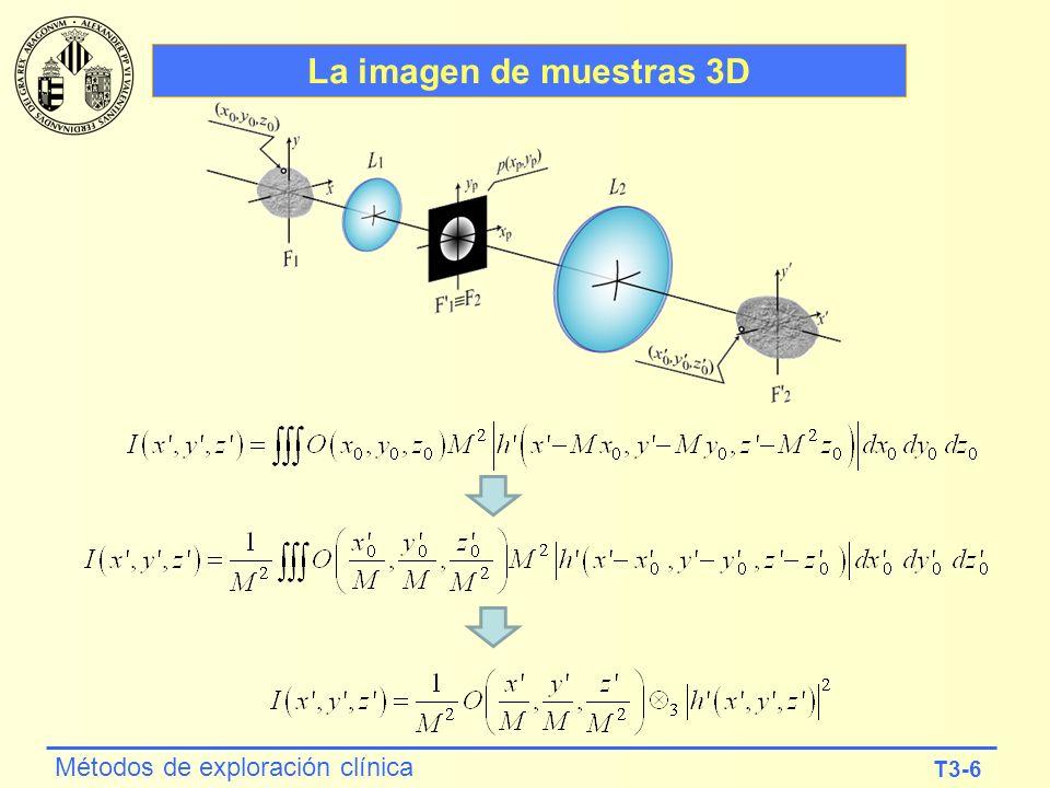 T3-6 Métodos de exploración clínica La imagen de muestras 3D