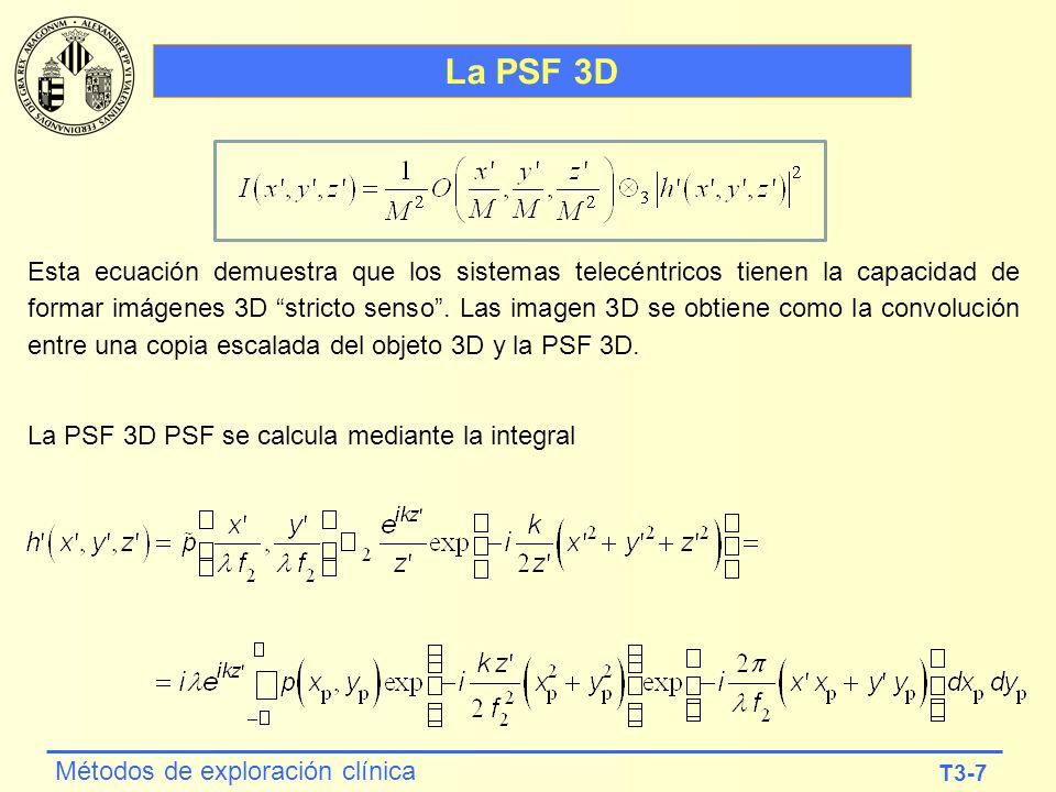 T3-7 Métodos de exploración clínica La PSF 3D Esta ecuación demuestra que los sistemas telecéntricos tienen la capacidad de formar imágenes 3D stricto