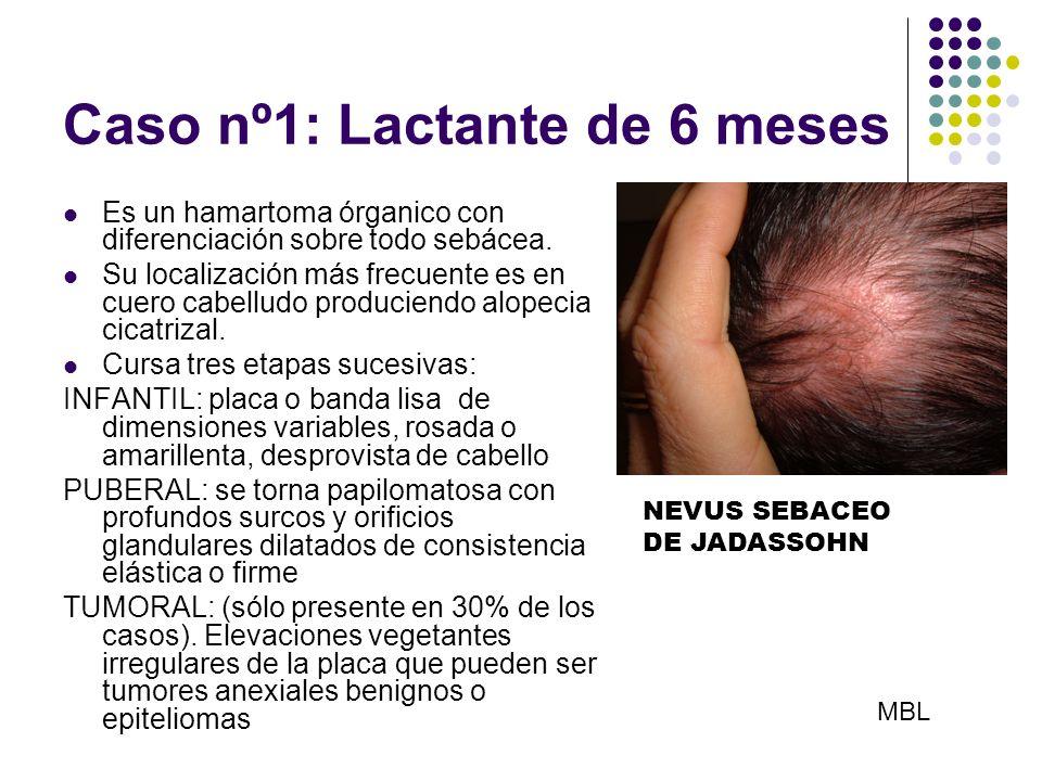 Caso nº1: Lactante de 6 meses Es un hamartoma órganico con diferenciación sobre todo sebácea. Su localización más frecuente es en cuero cabelludo prod