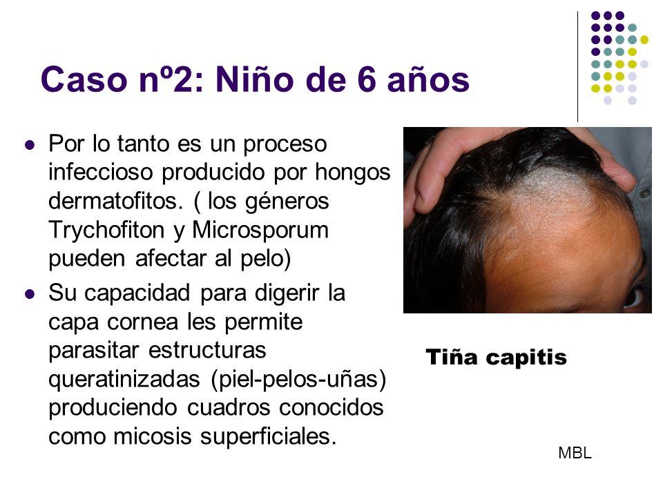 Caso nº2: Niño de 6 años Por lo tanto es un proceso infeccioso producido por hongos dermatofitos. ( los géneros Trychofiton y Microsporum pueden afect