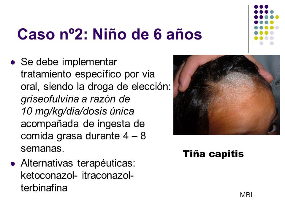 Caso nº2: Niño de 6 años Se debe implementar tratamiento específico por via oral, siendo la droga de elección: griseofulvina a razón de 10 mg/kg/dia/d