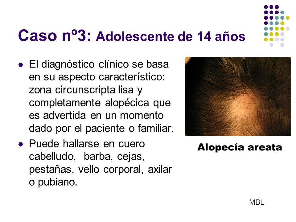 Caso nº3: Adolescente de 14 años El diagnóstico clínico se basa en su aspecto característico: zona circunscripta lisa y completamente alopécica que es