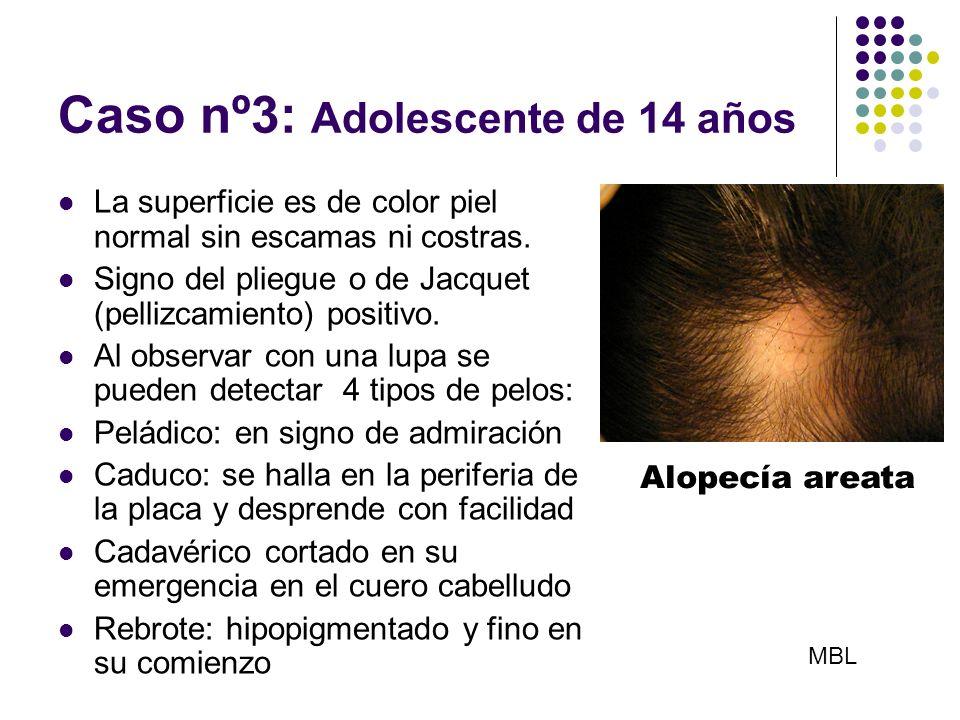 Caso nº3: Adolescente de 14 años La superficie es de color piel normal sin escamas ni costras. Signo del pliegue o de Jacquet (pellizcamiento) positiv