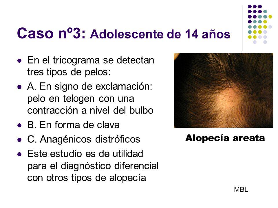 Caso nº3: Adolescente de 14 años En el tricograma se detectan tres tipos de pelos: A. En signo de exclamación: pelo en telogen con una contracción a n