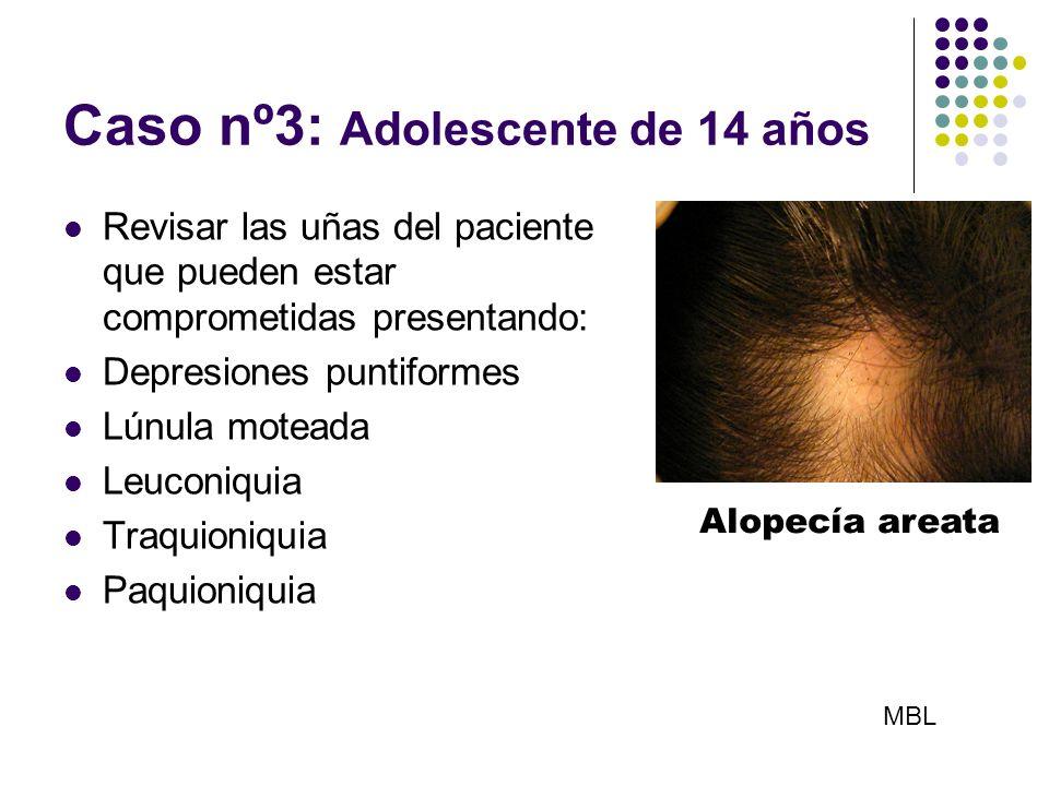 Caso nº3: Adolescente de 14 años Revisar las uñas del paciente que pueden estar comprometidas presentando: Depresiones puntiformes Lúnula moteada Leuc