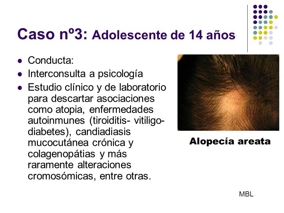 Caso nº3: Adolescente de 14 años Conducta: Interconsulta a psicología Estudio clínico y de laboratorio para descartar asociaciones como atopia, enferm