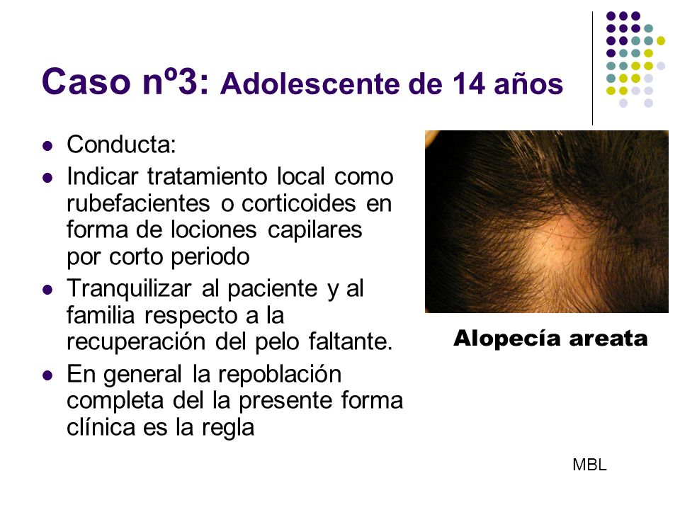 Caso nº3: Adolescente de 14 años Conducta: Indicar tratamiento local como rubefacientes o corticoides en forma de lociones capilares por corto periodo