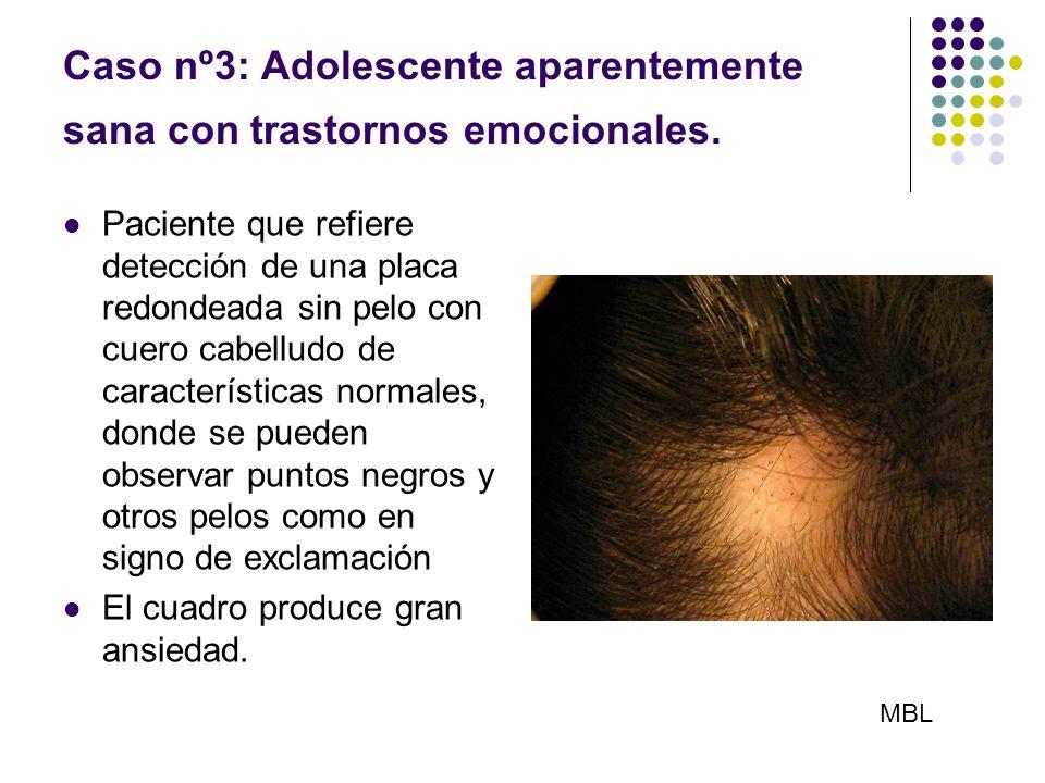 Caso nº3: Adolescente aparentemente sana con trastornos emocionales. Paciente que refiere detección de una placa redondeada sin pelo con cuero cabellu