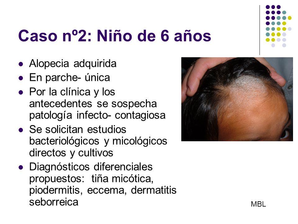 Caso nº2: Niño de 6 años Alopecia adquirida En parche- única Por la clínica y los antecedentes se sospecha patología infecto- contagiosa Se solicitan