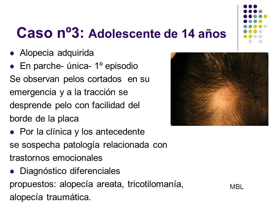Caso nº3: Adolescente de 14 años Alopecia adquirida En parche- única- 1º episodio Se observan pelos cortados en su emergencia y a la tracción se despr