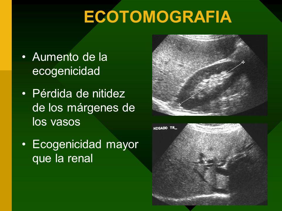 ECOTOMOGRAFIA Aumento de la ecogenicidad Pérdida de nitidez de los márgenes de los vasos Ecogenicidad mayor que la renal