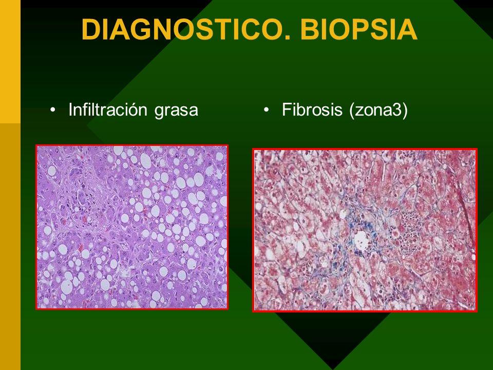 DIAGNOSTICO. BIOPSIA Infiltración grasaFibrosis (zona3)