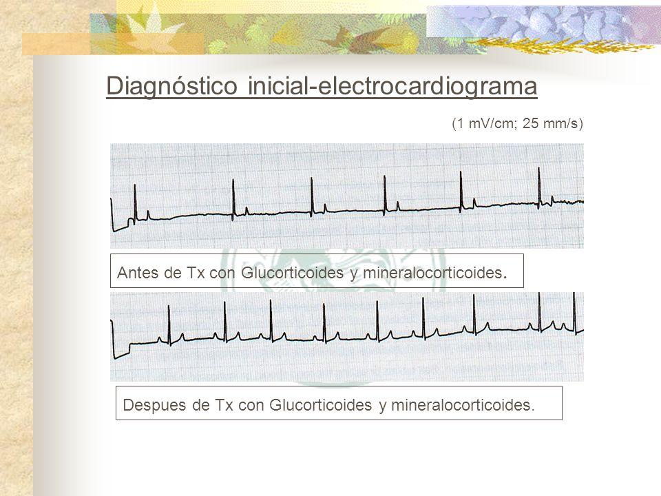 Antes de Tx con Glucorticoides y mineralocorticoides. Despues de Tx con Glucorticoides y mineralocorticoides. (1 mV/cm; 25 mm/s)