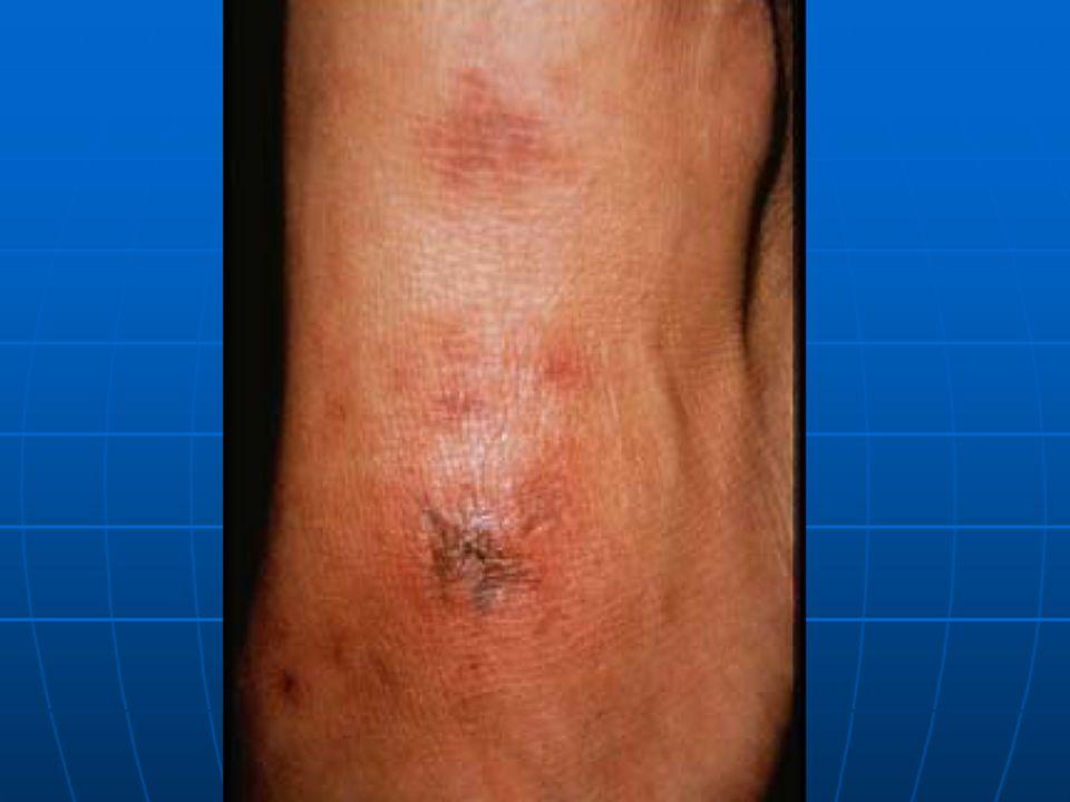 Varón de 38 años que presenta lesión nodular, luego ulcerada en codo y períodos de manchas rojizas en ambos miembros inferiores. Se nota cansado con v