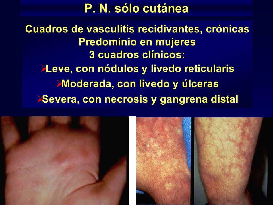Criterios para la clasificación de la panarteritis nodosa (American College of Rheumatology, 1990 1.Pérdida de peso mayor o igual a 4 Kg. 2.Livedo ret