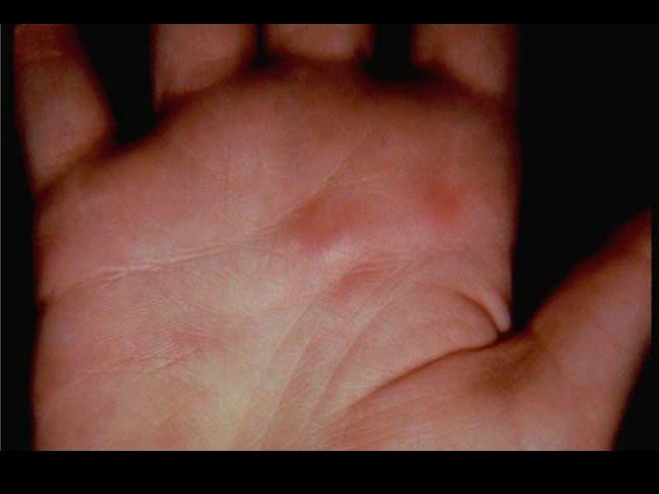 P. N. sólo cutánea Cuadros de vasculitis recidivantes, crónicas Predominio en mujeres 3 cuadros clínicos: Leve, con nódulos y livedo reticularis Moder