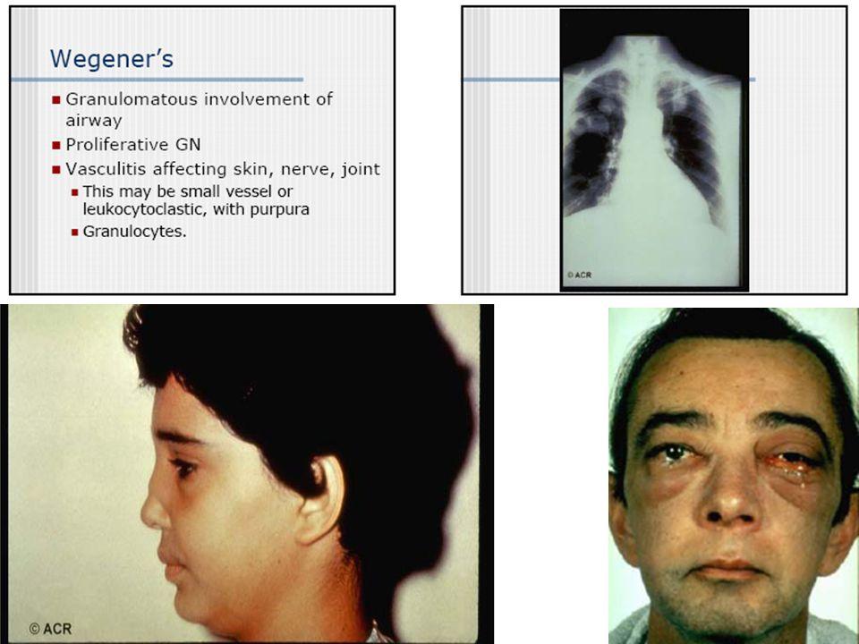 WEGENERS GRANULOMATOSIS Granulomas necrotizantes en vía aérea superior e inferior Glomerulonefritis focal necrotizante Vasculitis focal necrotizante e
