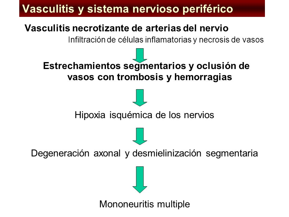 Isolated central nervous system vasculitis Isolated central nervous system vasculitis affects medium and small arteries over a diffuse area of the cen