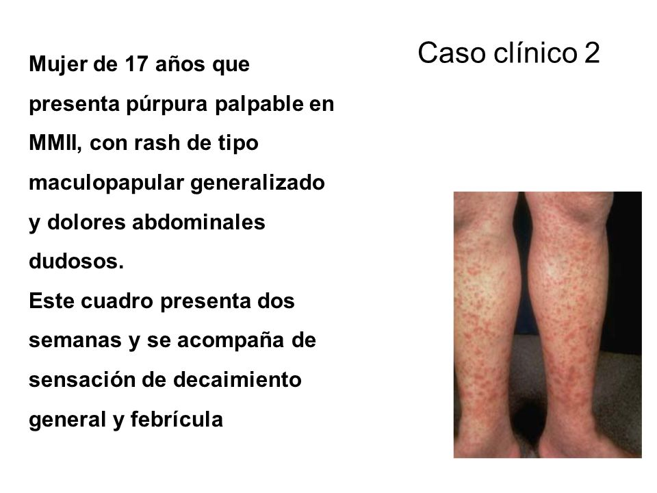 CLINICAL FINDINGS A syndrome of multiple mononeuropathies Single peripheral or cranial nerves are affected in succession +/- Distal symmetric polyneuropathy Abrupt onset of weakness Prickling paresthesia Sensory loss Local pain