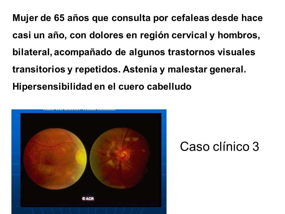 Caso clínico 2 Mujer de 17 años que presenta púrpura palpable en MMII, con rash de tipo maculopapular generalizado y dolores abdominales dudosos. Este