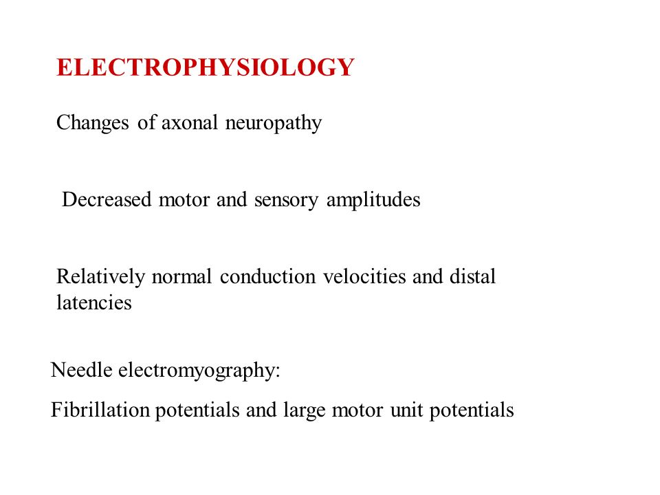 CLINICAL FINDINGS A syndrome of multiple mononeuropathies Single peripheral or cranial nerves are affected in succession +/- Distal symmetric polyneur