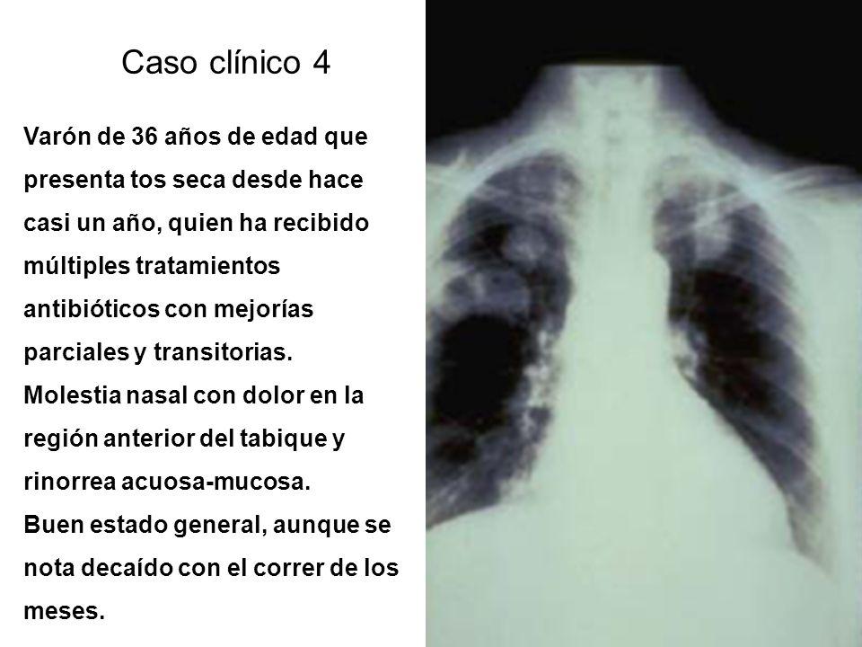 Caso clínico 3 Mujer de 65 años que consulta por cefaleas desde hace casi un año, con dolores en región cervical y hombros, bilateral, acompañado de a