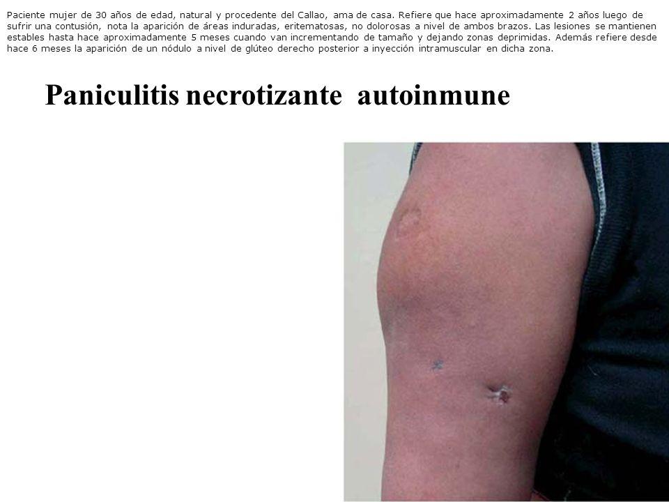 Signos Clínicos sospechosos de Vasculitis Sistémicas