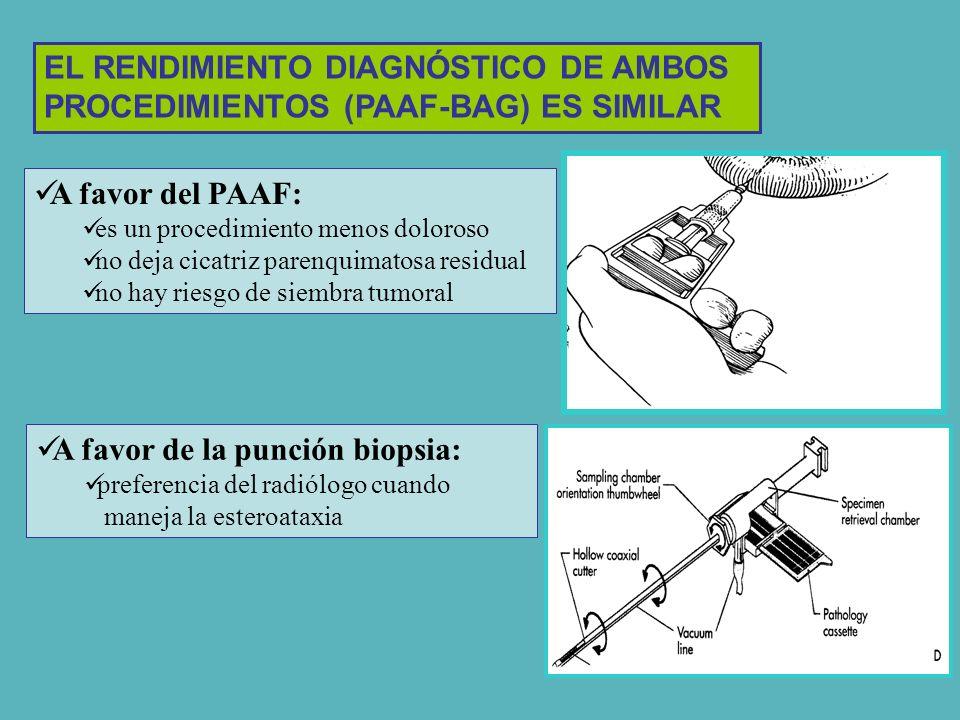 A favor del PAAF: es un procedimiento menos doloroso no deja cicatriz parenquimatosa residual no hay riesgo de siembra tumoral A favor de la punción b