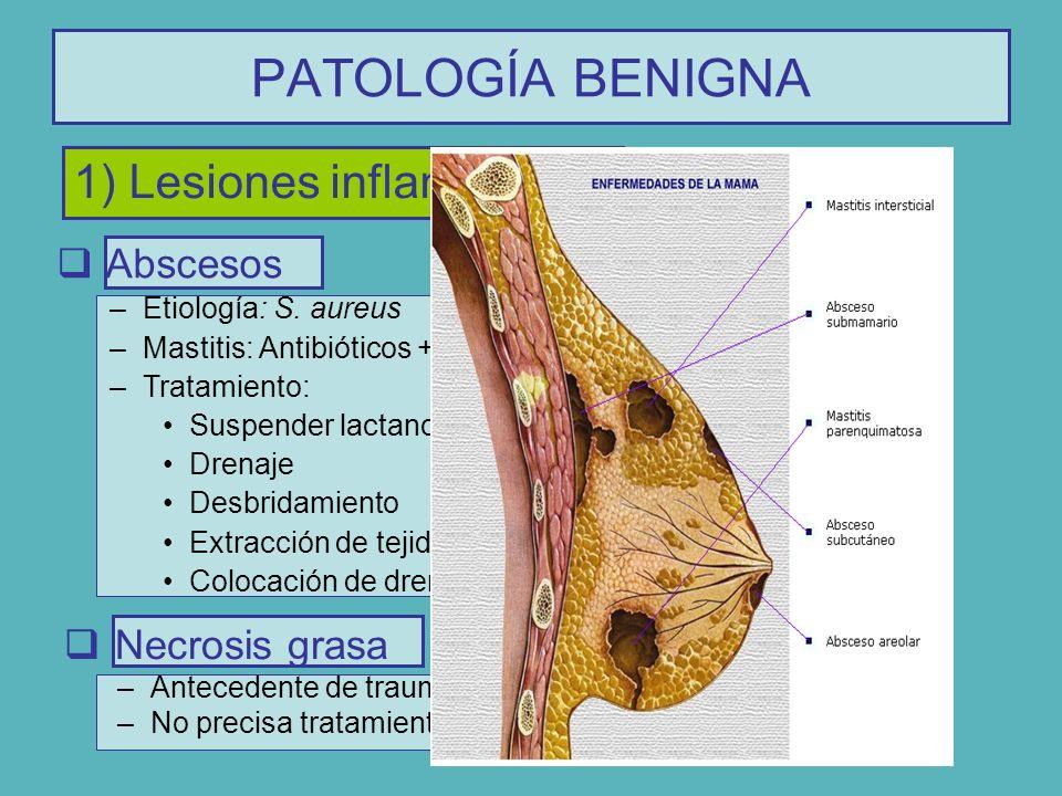 PATOLOGÍA BENIGNA 1) Lesiones inflamatorias Abscesos –Etiología: S. aureus –Mastitis: Antibióticos + Antiinflamatorios –Tratamiento: Suspender lactanc