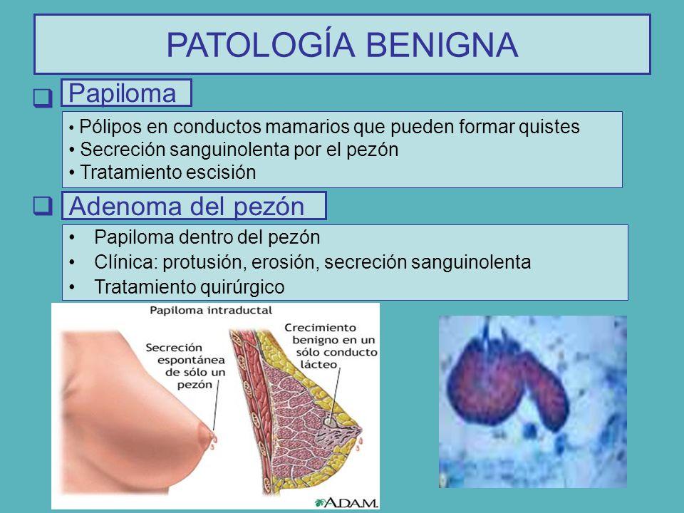 Pólipos en conductos mamarios que pueden formar quistes Secreción sanguinolenta por el pezón Tratamiento escisión Papiloma PATOLOGÍA BENIGNA Papiloma